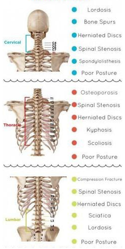 Lower Back Pain Therapy Los Angeles - Massage Rx
